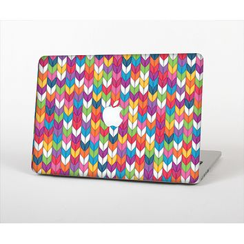 The Color Knitted Skin Set for the Apple MacBook Pro 15""