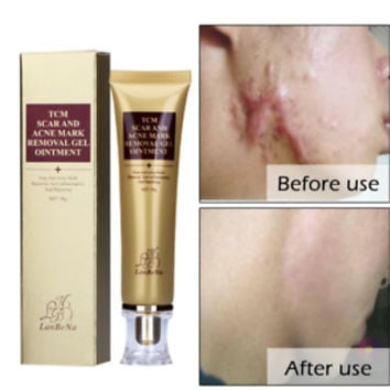 Acne Scar Removal Cream, Skin Repair Cream Scar Cream Gel Scar Face Treatment