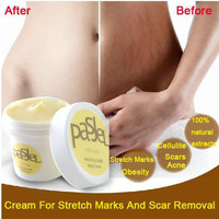 Powerful to Stretch Marks Essential Oils Skin Treatment Care Cream For Stretch Marks Obesity Postpartum Repair Cream