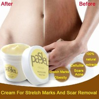 50g Precious Skin Body Cream Remove Stretch Marks Treatment Postpartum Repair Whitening Pregnancy Scar Removal For Dropshippping