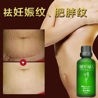50ml——  Powerful To Stretch Marks Maternity Essential Oil Skin Care Treatment Cream For Stretch Mark Remover Obesity Postpartum Repair (Size: 50 ml) = 1946690884