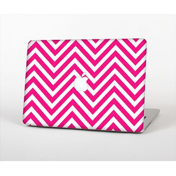 The Pink & White Sharp Chevron Pattern Skin Set for the Apple MacBook Air 13""