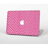 The White & Pink Sharp Chevron Pattern Skin Set for the Apple MacBook Air 11""
