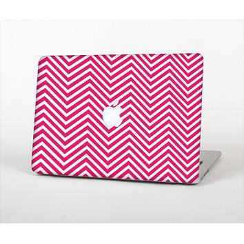 """The White & Pink Sharp Chevron Pattern Skin Set for the Apple MacBook Air 11"""""""