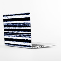 The Bottom Line Laptop Skin