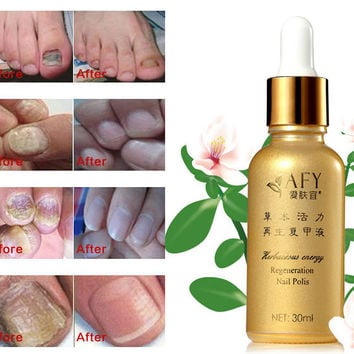 AFY 30ML nail problem treatment of onychomycosis Repair nails nursing ringworm of nails leuconychia Essential oil