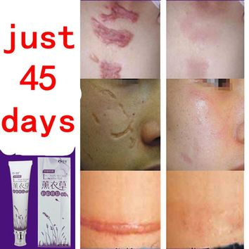 face anti care acne treatment cream scar removal oily skin Acne Spots skin care face stretch marks remover