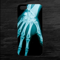 Hand X-Ray iPhone 4 and 5 Case