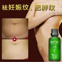 BENARS Powerful To Stretch Marks Maternity Essential Oils Treatment Cream For Stretch Mark Remover Obesity Postpartum Repair (Size: 50 ml) = 1945832580