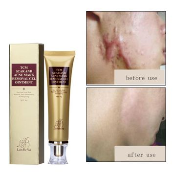 extract against black dots cream scar removal facial acne skin care treatment, bleaching cream 30ml ointment
