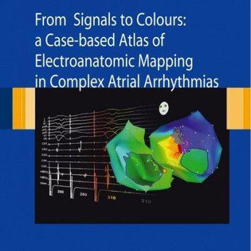 From Signals to Colours: A Case-based Atlas of Electroanatomic Mapping in Complex Atrial Arrhythmias: From Signals to Colours