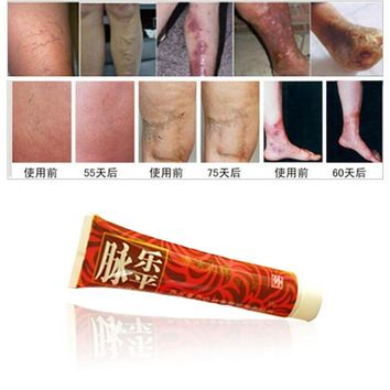 1pc Mai Le Ping Varicose Veins Ointment Vasculitis Treatment. Phlebitis. Angiitis Inflammation Blood Vessel Rotten Legs