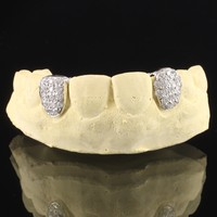 Men's 10k White Gold Iced Out Two Teeth with Back Bar