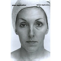 Collage Face Lift Kit with Rapid Wrinkle Erase Cream