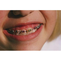 Close view of childrens braces shows the different colored rubber bands availa ble
