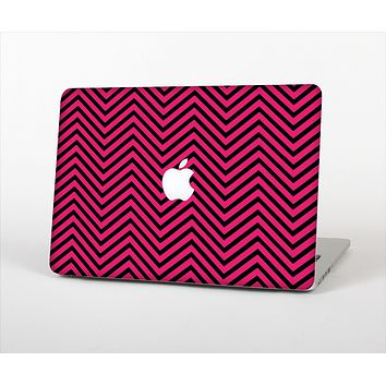 The Black & Pink Sharp Chevron Pattern Skin Set for the Apple MacBook Pro 13""