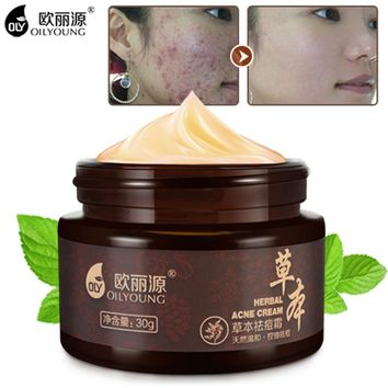 Herbal Acne Cream Anti Pimple Spot Acne Scars Blackhead Removal Cream Whitening Beauty Skin Face Care Creams Acne Treament