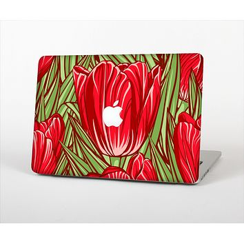 The Sketched Pink & Green Tulips Skin Set for the Apple MacBook Air 13""