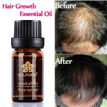 Anti-hair Care Essential Oil Pure Natural No Side Effects To Promote Hair Hair Growth Products